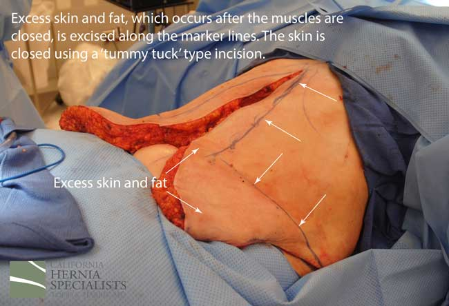 Open Incisional Hernia Repair