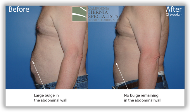 Open Incisional Hernia Repair Component Separation