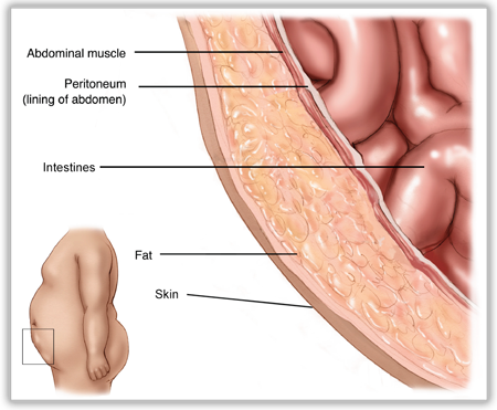 what is a hernia - Layers of the Abdominal Wall