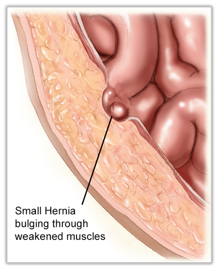 what is a hernia - Early Hernia Formation