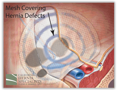Hernia Anatomy California Hernia Specialists
