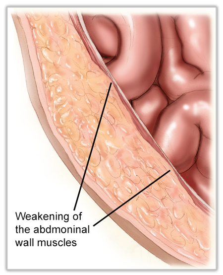 what is a hernia - Early Abdominal Wall Hernia