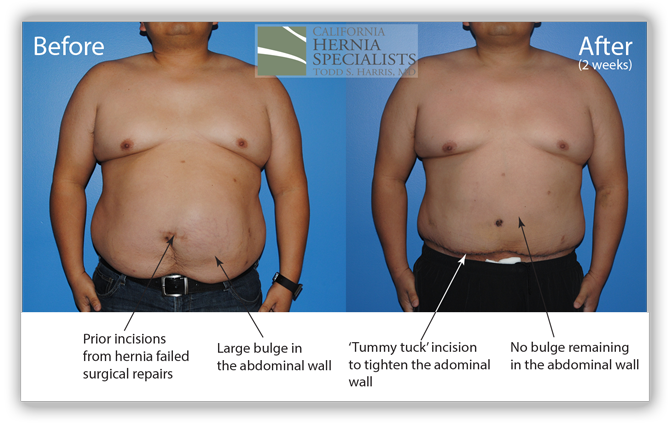 Recurrent umbilical hernia surgery