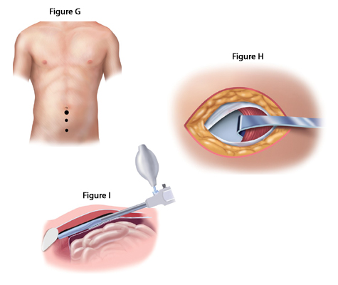 Laparoscopic Inguinal Hernia Repair