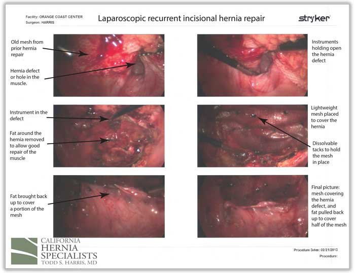 Recurrent Incisional Hernia Repair