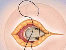Hernia Types - Umbilical closure