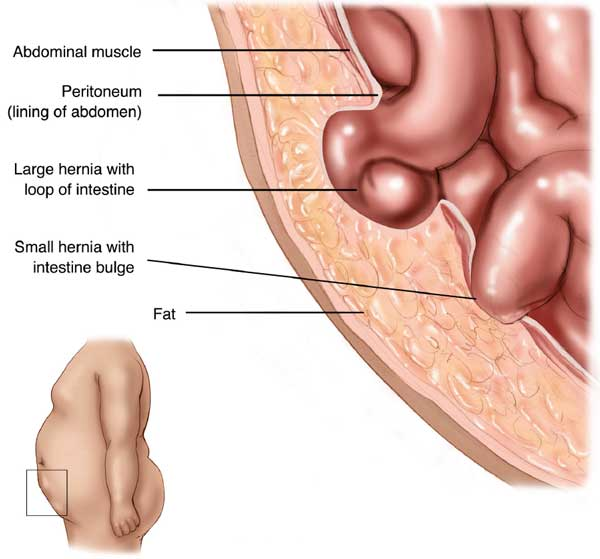 what is a hernia - Late Hernia Formation