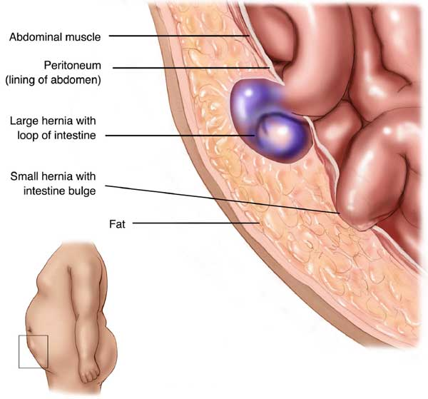 what is a hernia - Strangulated Ventral Hernia Side View