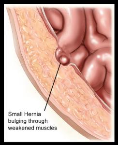 Early-Hernia