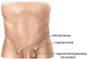 Hernia Symptoms - California Hernia Specialists