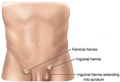 types of hernias california hernia specialists : hernia locations diagram - findchart.co