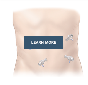 learn more about hernia surgery